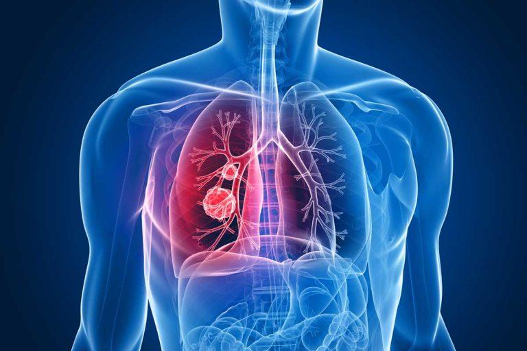 Tumore polmonare, firma genetica che resiste alla chemioterapia