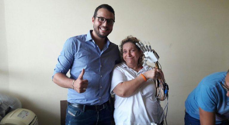 Mano bionica impiantata su donna italiana