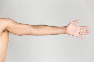 Guariti pazienti con un braccio parzialmente paralizzato