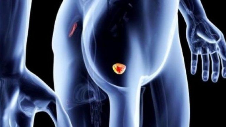 Esame delle urine per diagnosticare tumore alla prostata