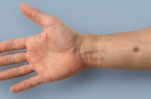 Un neo artificiale per diagnostica tumori