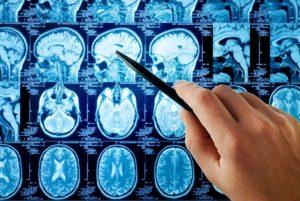 Aumento vertiginoso dei tumori al cervello: perchè?