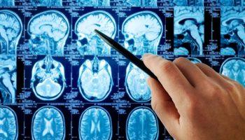 tumore_cervello