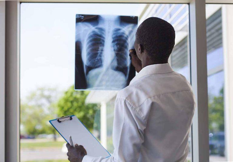 Cellule staminali in grado di ripulire i polmoni dalla fibrosi